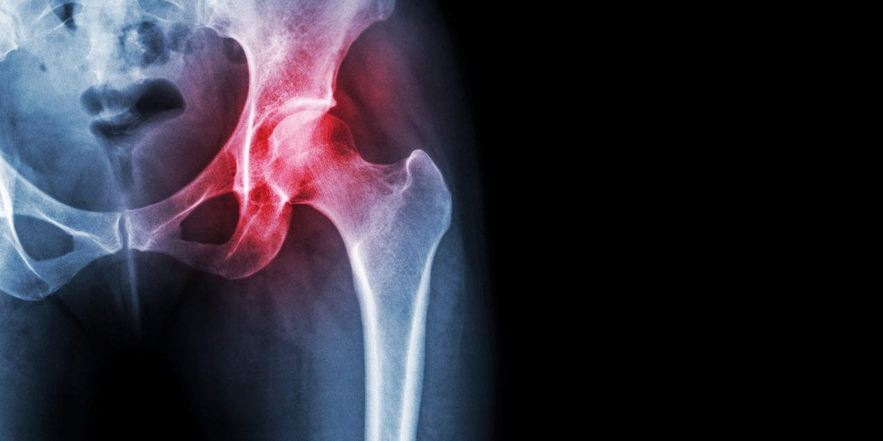 Got Hip Pain: Think About This