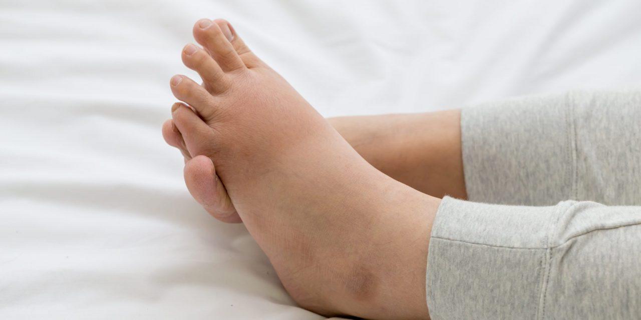 Leg Swelling: Causes, Diagnosis, & Treatment