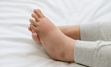 Leg Swelling: Causes, Diagnosis, & Treatment