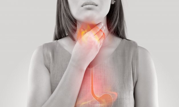 What to Know About GERD: Heartburn & Reflux
